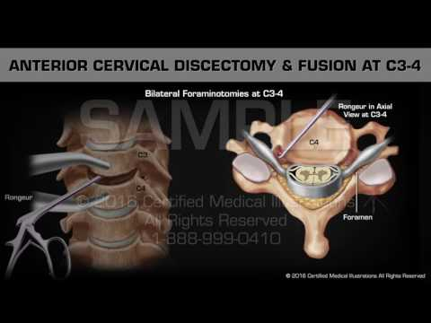 Anterior Cervical Discectomy & Fusion at C3-4