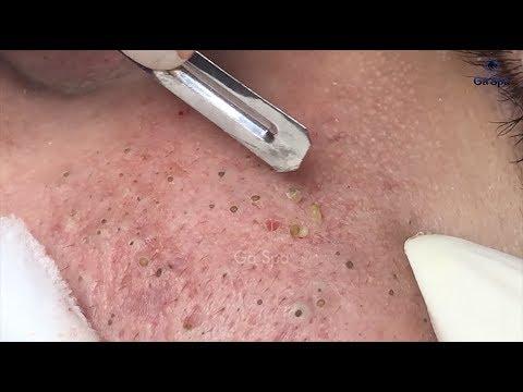 Full Blackhead Popping Video