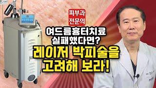 여드름 흉터 없애는 확실한 치료법!!!!-레이저 박피
