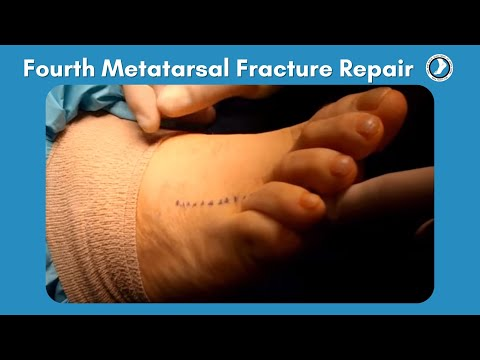 Fourth Metatarsal Fracture Repair performed by Dr. Paul Steinke FACFAS