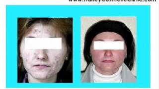 tca chemical peel skin treatments
