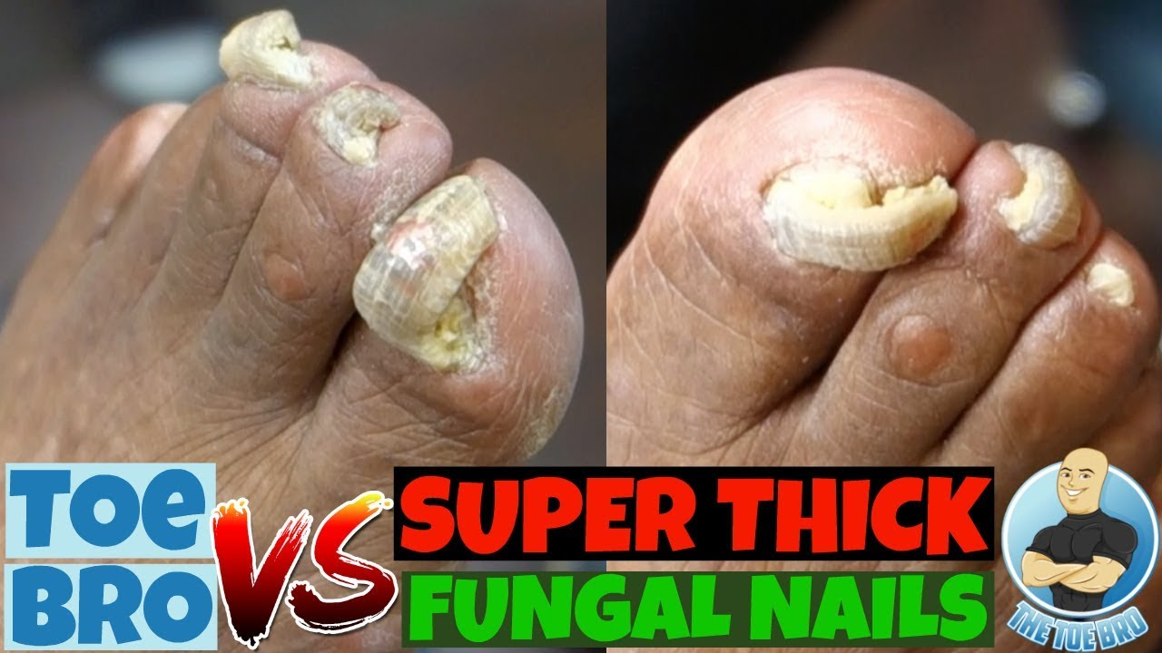 Trimming of Super Thick Fungal Nails: FULL TREATMENT - YouTube