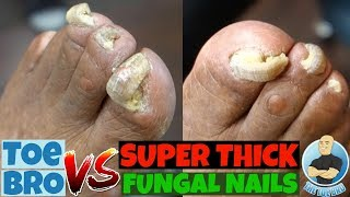 Trimming of Super Thick Fungal Nails: FULL TREATMENT