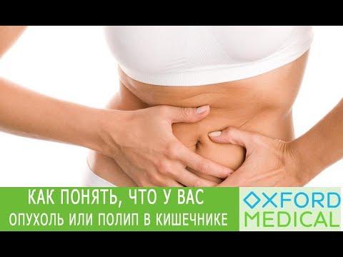 Как болит полип в кишечнике