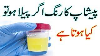 Urine Problem Peshab Ka Desi ilaj in Urdu |' Hindi ' Sehat Hai Zindagi
