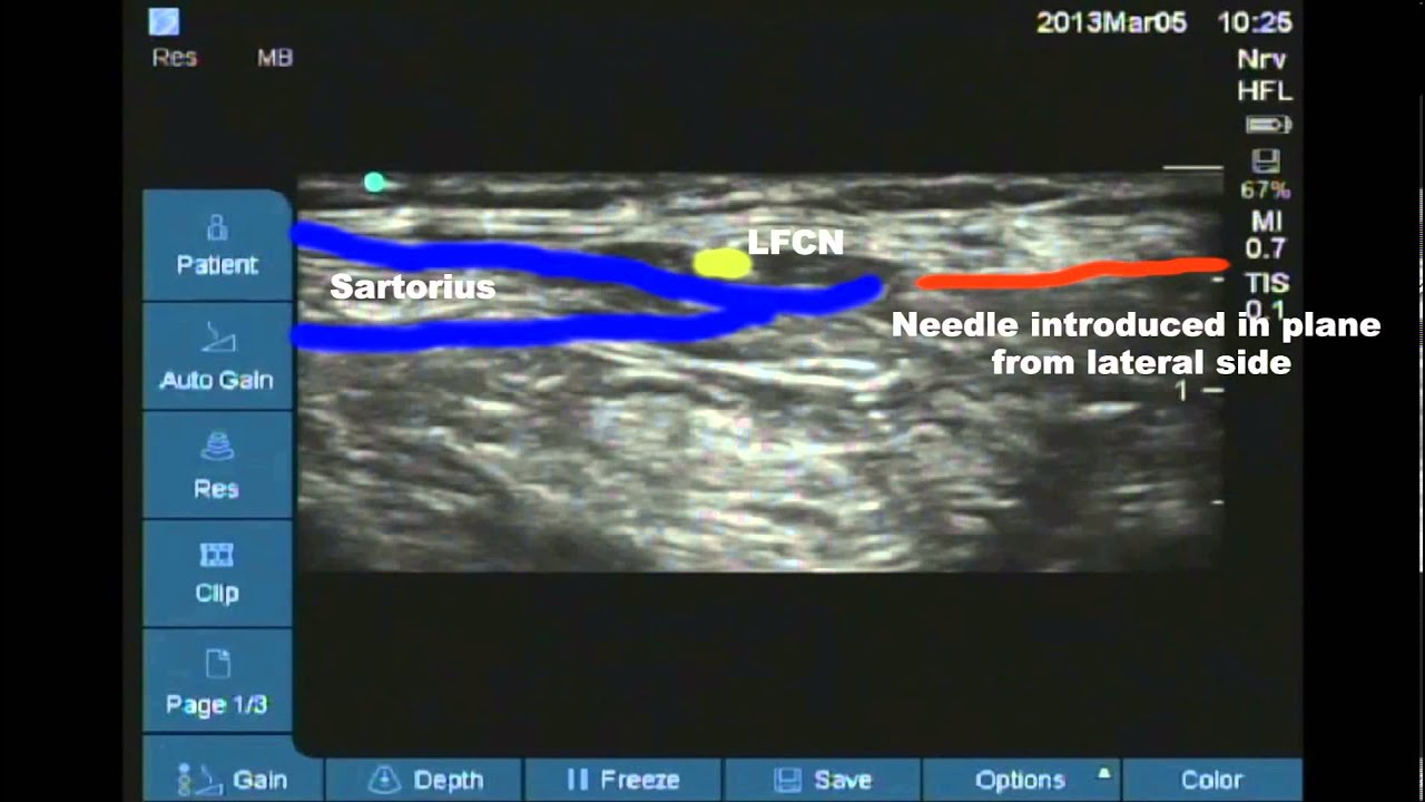 ultrasound guided lateral femoral cutaneous nerve of thigh block, Muscles