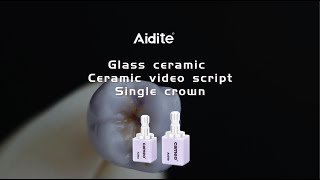 Ceramic video script - Glazed glass ceramic Single crown