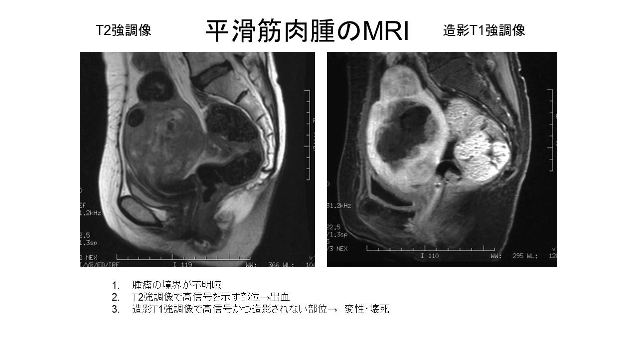 筋腫 子宮