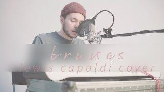 BRUISES - LEWIS CAPALDI COVER