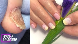 Эти ногти НИКОГДА НЕ ПОКРЫВАЛИ гель лаком Преображение деформированного ногтя