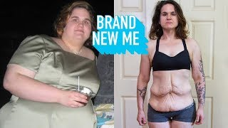 I Lost 250lbs, Now I'm Ready To Lose My Excess Skin   BRAND NEW ME