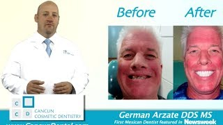 Cancun Dentist - Cancun Dentistry - Dental Mexico Thumbnail
