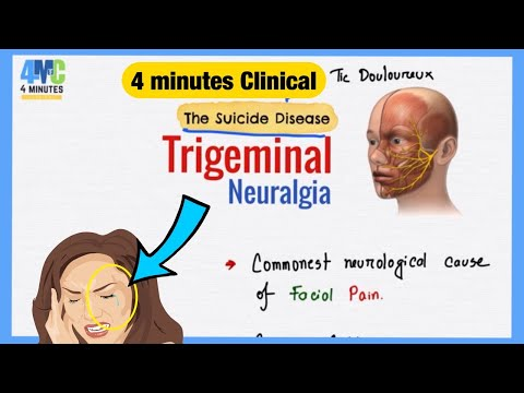 What is Neuralgia? How do I live with it?? | Chronic Illness.