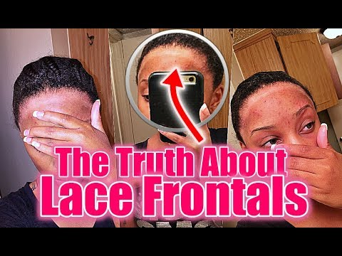 What They Don't Tell You About Frontals Keepin It REAL!!!!!!