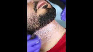 Témoignage problèmes de poils incarnés chez les hommes