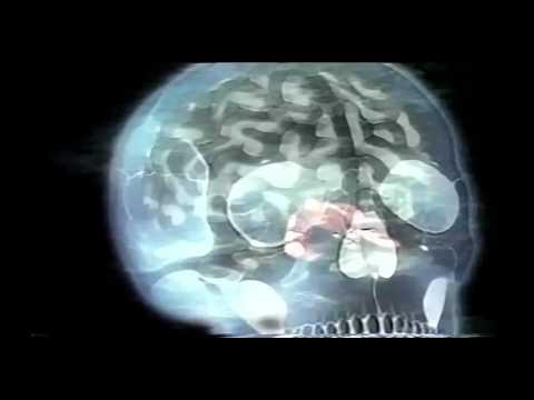 Dr. Persinger's God Helmet