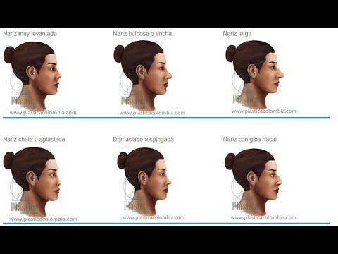 Tipos de nariz cirugia de nariz dr jorge alberto for Tipos de estanques para acuicultura