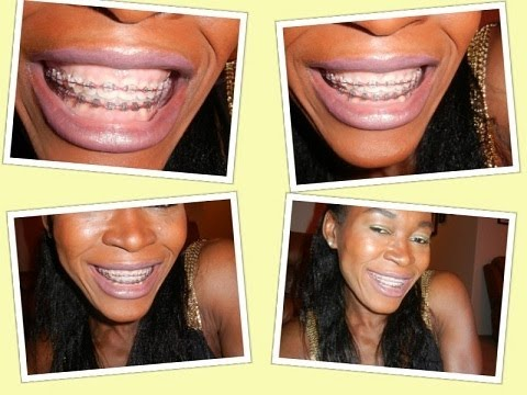 109 MY TEETH WHITENING METHODS EVEN WITH BRACES ON