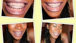 My Teeth Whitening Methods Even Ces