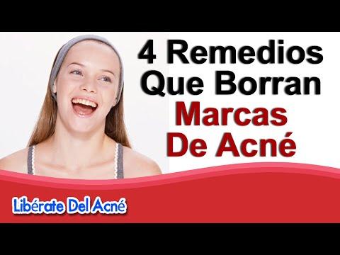 Como eliminar marcas de acné - Como quitar las marcas del acné