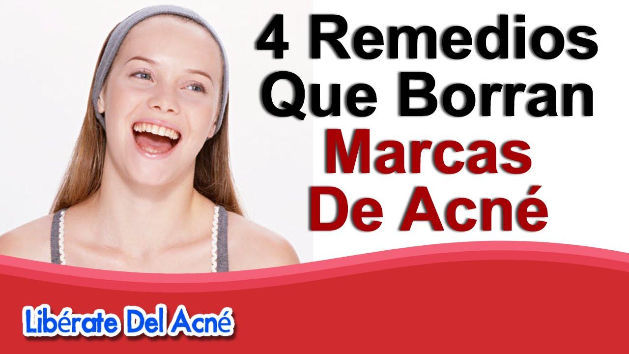 Como eliminar marcas de acn como quitar las marcas del - Como quitar la carcoma ...