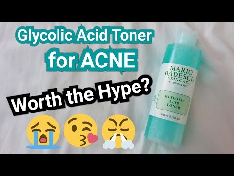 GLYCOLIC ACID TONER FOR ACNE ~ WORTH THE HYPE??