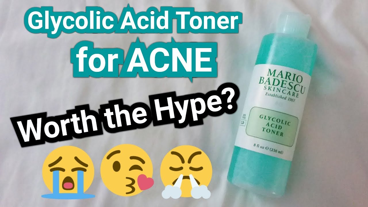 Glycolic Acid Toner For Acne Worth The Hype