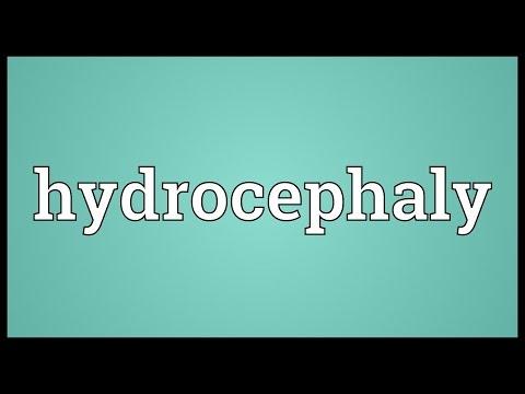 Header of hydrocephaly
