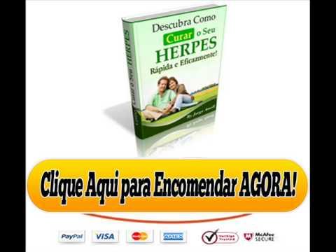 Para herpes genital pomada