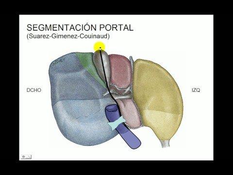 Segmentacion hepática - YouTube