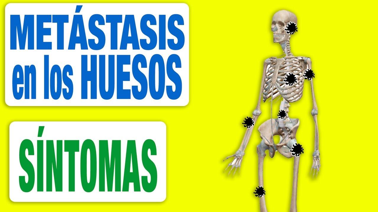 cáncer de próstata metástasis ósea terapia de tratamiento alternativa