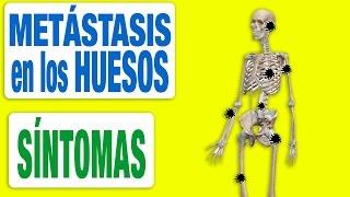 Generalizadas dolor causas óseo de