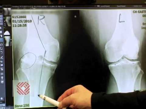 Total Knee Replacement Part 2: Symptoms & Evaluation