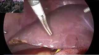 Canlı Vericili Karaciğer Naklinde  Modifiye Sağ Lob Graft-ASAN Tekniği Dr. Donk - Huwan Junk Videosu