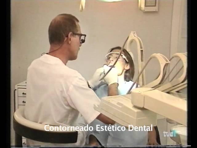 Contorneado Estético Dental Clinica Rosales Madrid Youtube