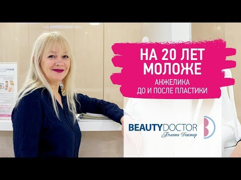 НА 20 ЛЕТ МОЛОЖЕ | Анжелика после пластики лица
