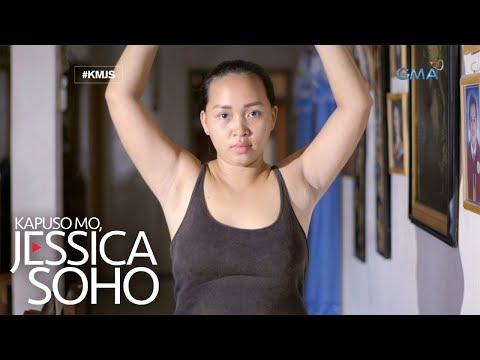 Kapuso Mo, Jessica Soho: Ginang sa Zamboanga del Sur, tinubuan ng suso sa kanyang kili-kili?