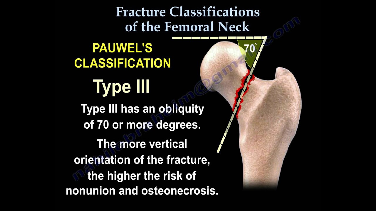 Femoral Neck fracture Classifications - Everything You Need To Know ...