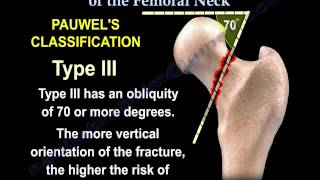 Femoral Neck Classifications - Everything You Need To Know - Dr. Nabil Ebraheim