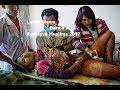 Barma And Rohingya Muslims Latest News 2017 Barma New Muslims Killing Video 2017 mp3
