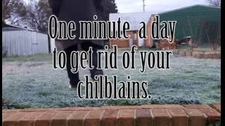No more chilblains