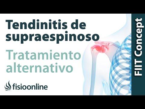 Tratamiento de la tendinitis de hombro o supraespinoso izquierdo