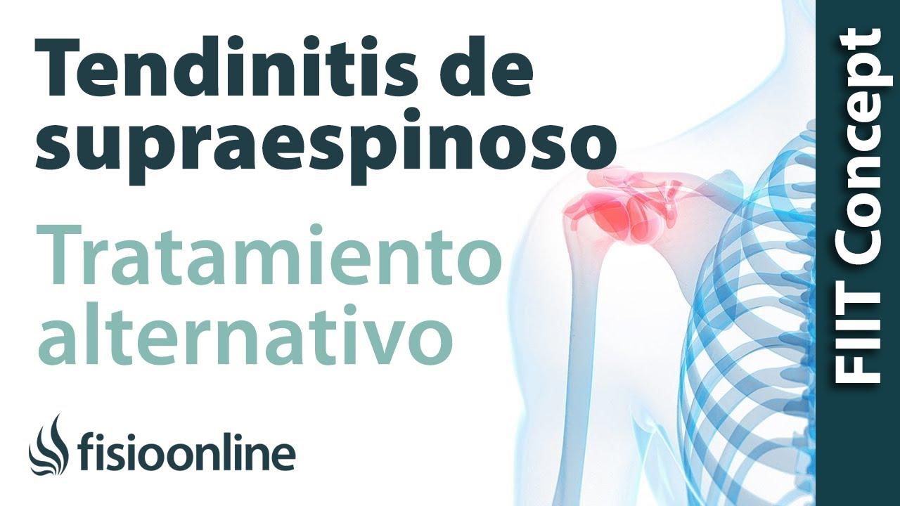 Las complicaciones de la hernia del departamento de pecho de la columna vertebral