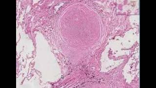 Histopathology Lung--Silicosis