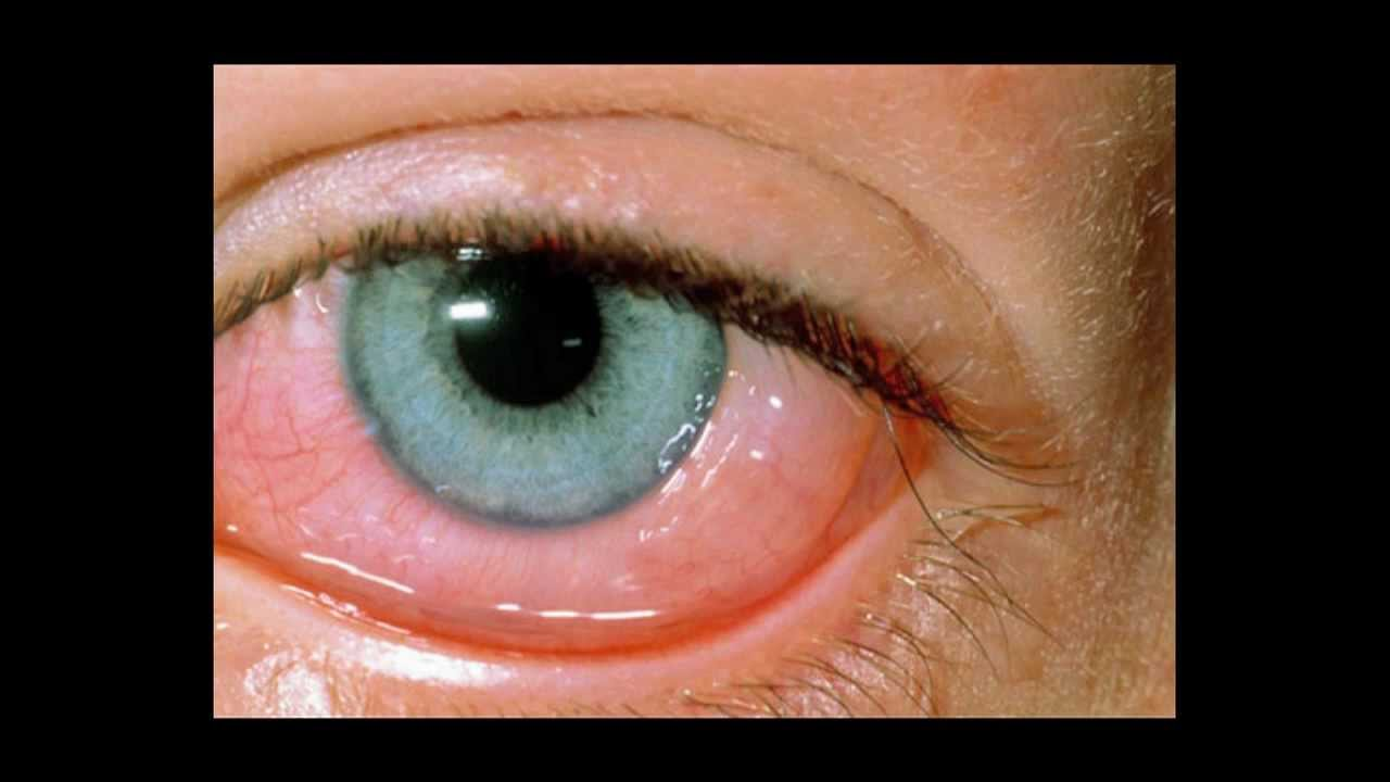 allergic conjunctivitis - youtube, Skeleton