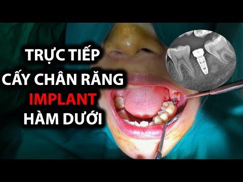 Trực tiếp cấy Implant răng hàm dưới bằng kỹ thuật Flapless