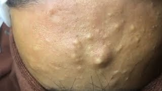 How to Remove Blackheads And Whiteheads On Face Easy ✦ Acne Treatment ✦ thumbnail