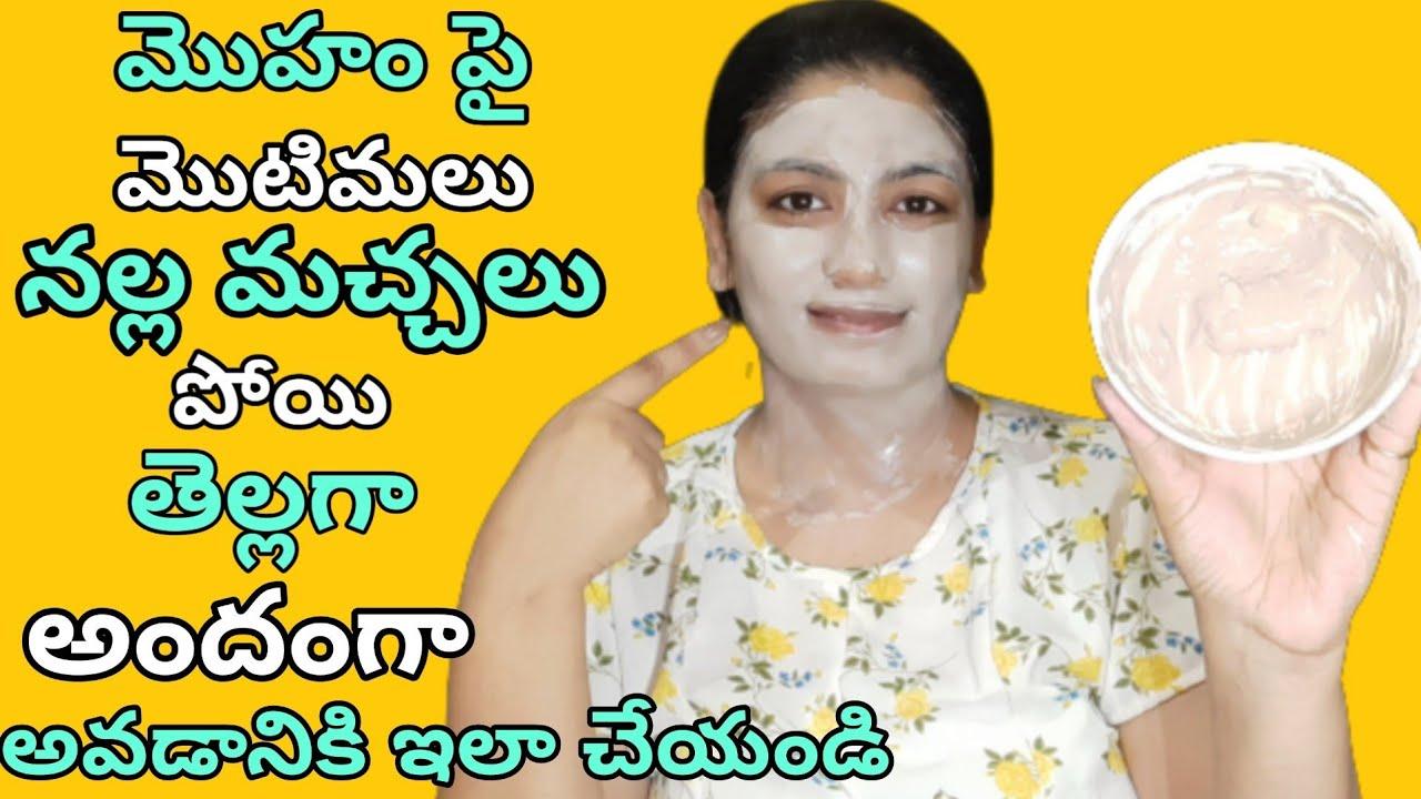 Acne Treatment at home in Telugu|Acne Scar removal at home in telugu| Acne prone skin care mamaearth
