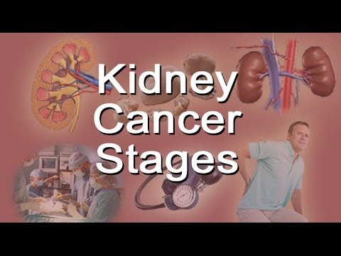 Kidney Cancer Stages Youtube