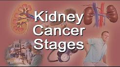hqdefault - Average Life Expectancy Kidney Cancer
